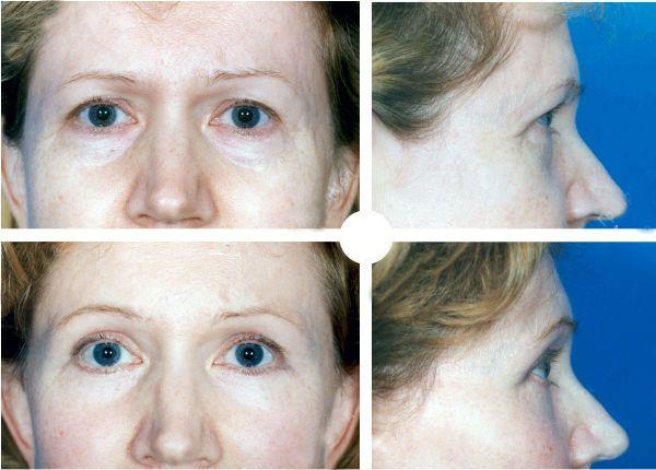 Блефаропластика нижних век до и после фото