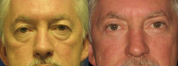 Блефаропластика нижних век у мужчин фото