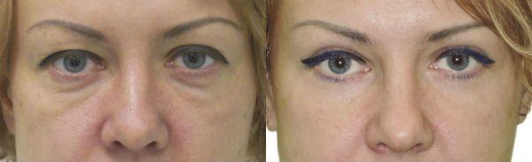 Нижняя блефаропластика век фото до и после процедуры