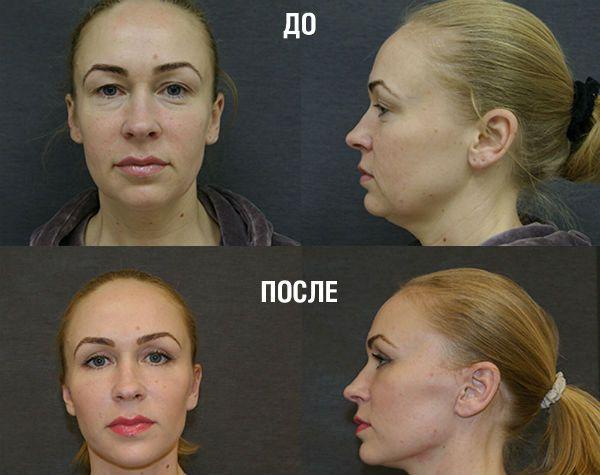 Нижняя блефаропластика век фото до и после