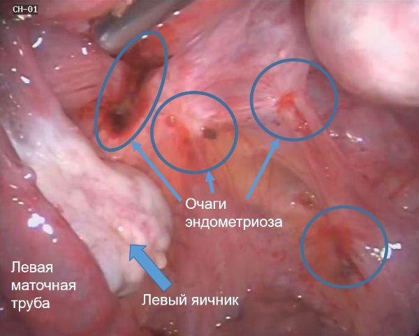Очаги эндометриоза на связках матки фото