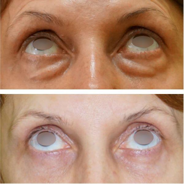 Устранение мешков под глазами блефаропластика до и после процедуры
