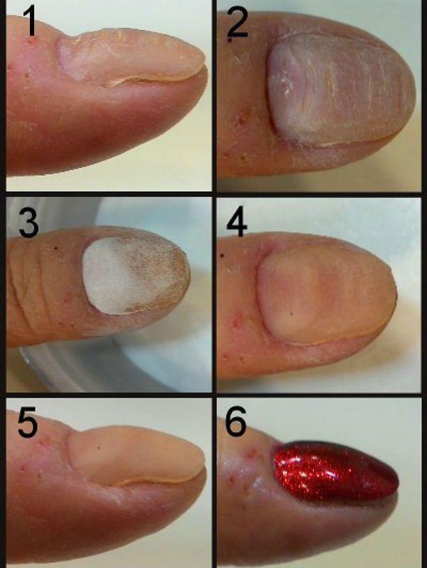 Выравнивание ногтей акриловой пудрой фото