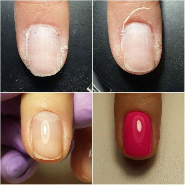 Выравнивание ногтей биогелем фото
