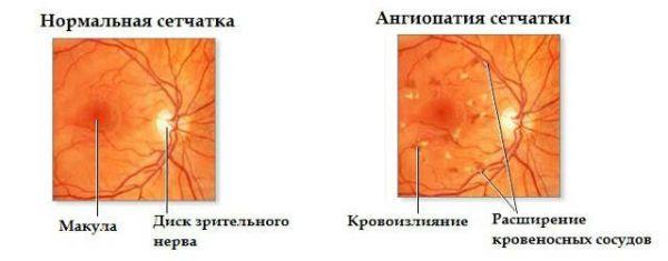 Ангиопатия фото