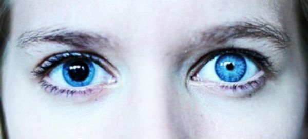 Анизокория фото