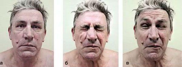 Блефароспазм фото