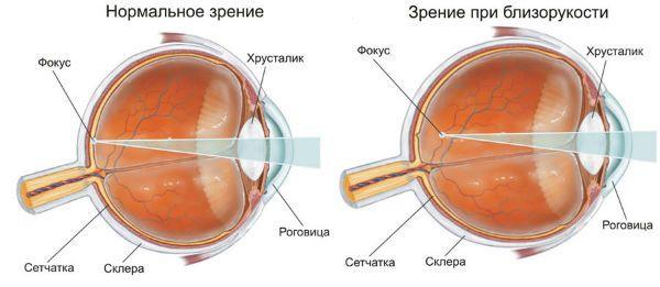 Близорукость (миопия) фото