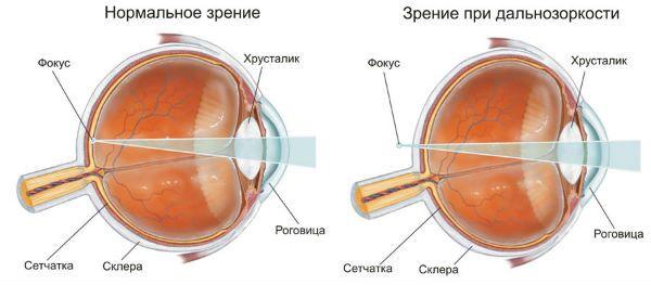 Дальнозоркость (гиперметропия) фото