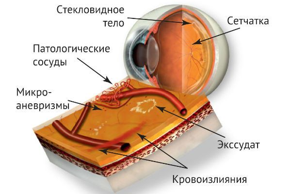 Диабетическая ретинопатия фото