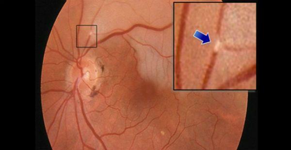Эмболия артерии сетчатки фото