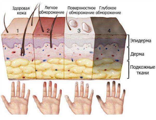 кожа при обморожении