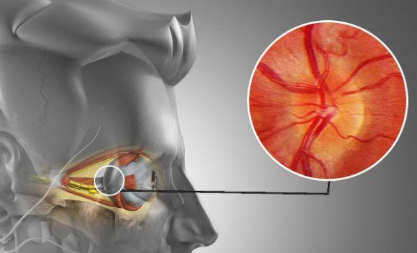 Неврит зрительного нерва фото