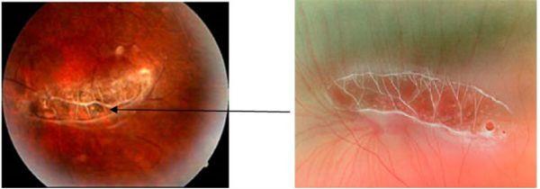 Дистрофия сетчатки глаза фото