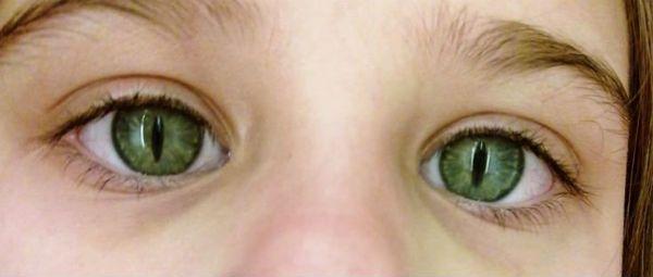 Синдром кошачьего глаза фото