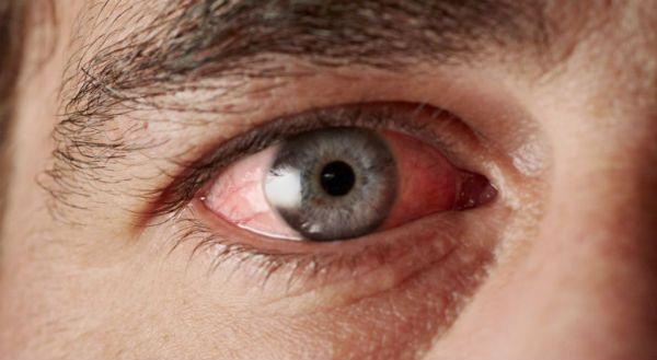 Синдром красного глаза фото