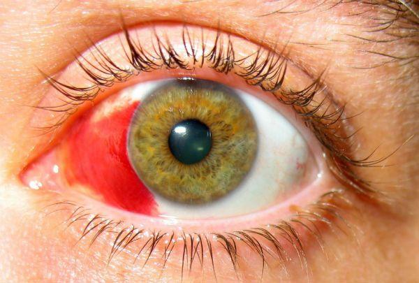 Субконъюнктивальное кровоизлияние фото