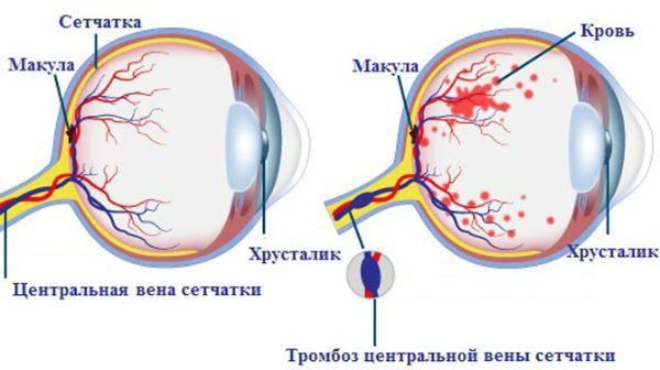 Тромбоз центральной вены сетчатки фото