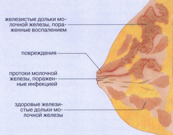 Мастит у кормящей матери фото