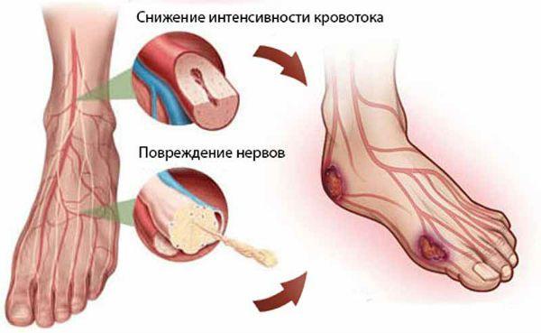 Полинейропатия фото