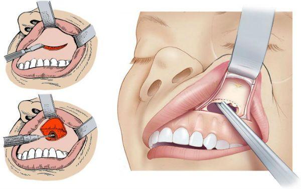 Проделывание надреза над верхней челюстью во рту при гайморите фото