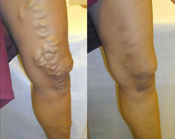 Тромбофлебит нижних конечностей до и после лечения фото