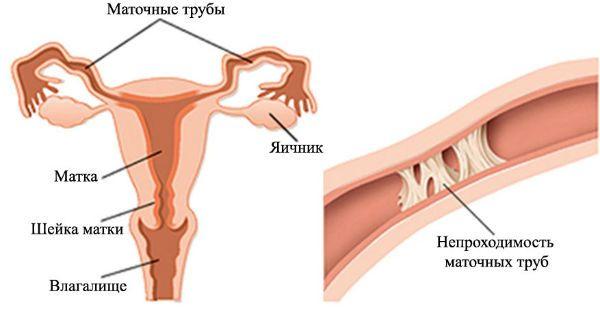 Удаление спаек при лапароскопии маточных труб фото