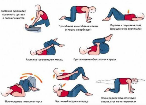 Лечебная гимнастика при радикулите фото