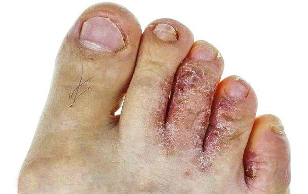 Грибок между пальцев ног фото