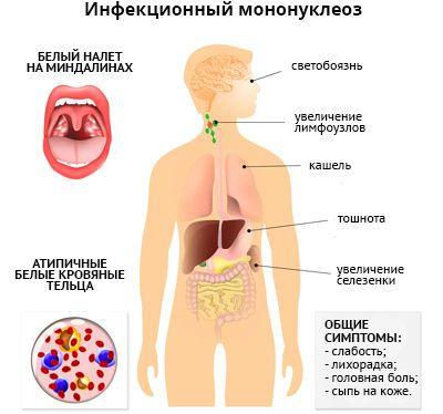 Инфекционный мононуклеоз симптомы фото