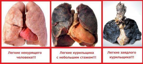 Легкие здорового человека и курильщика фото
