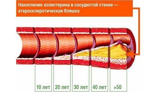 Накопление холестерина с возрастом фото