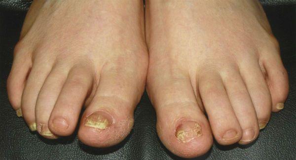 Ногти пораженные грибом фото