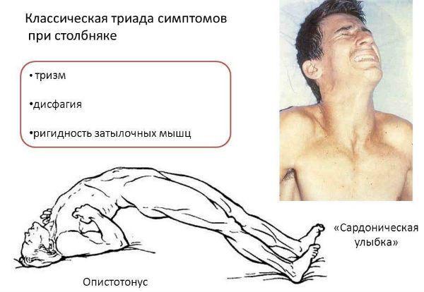 Симптомы столбняка фото