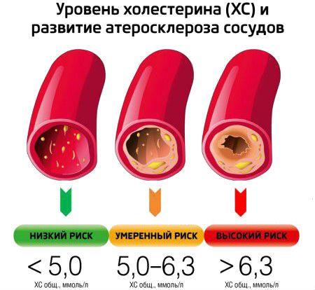 Уровень холестерина и развитие атеросклероза фото