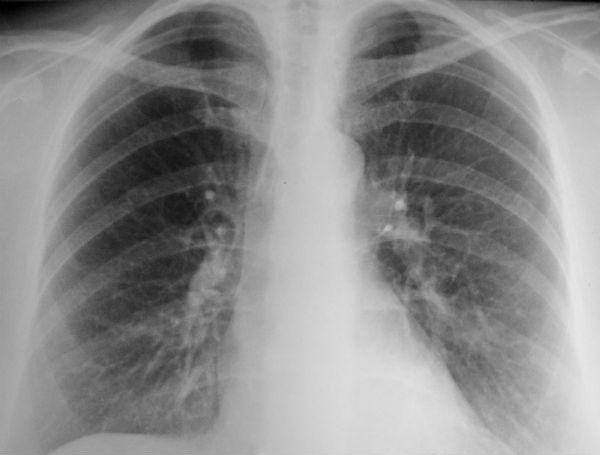 Кальцинаты на рентгене фото