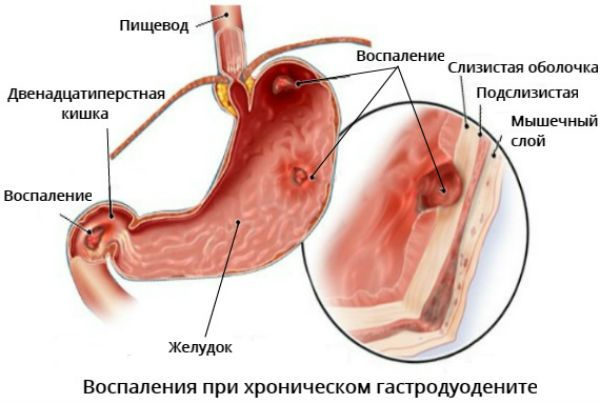 Воспаление при хроническом гастродуодените фото