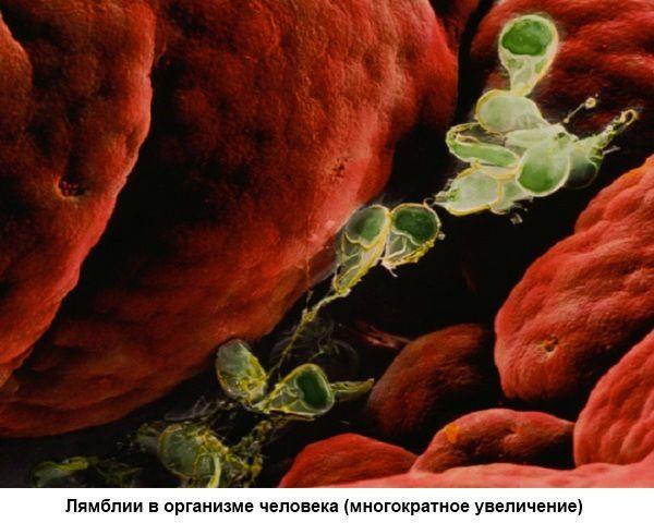 Лямблии в организме фото