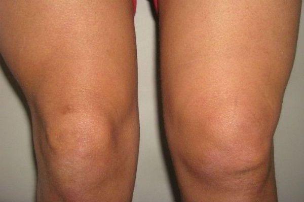 Отечность коленного сустава фото