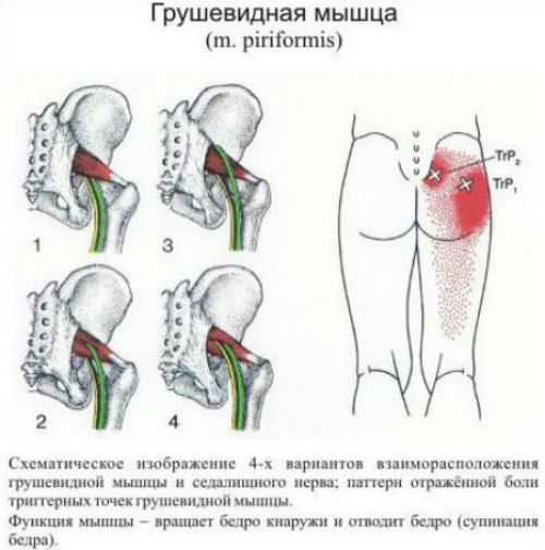 Расположение грушевидной мышцы и седалищного нерва фото
