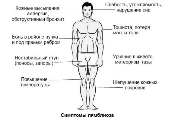 Симптомы лямблиоза фото