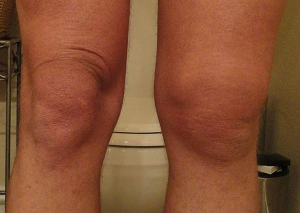 Синовит правого колена фото
