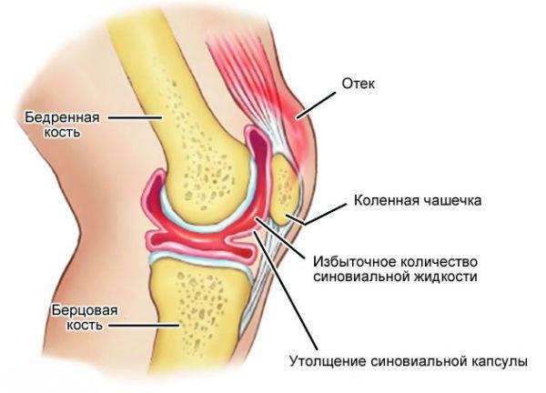 Воспаление коленного сустава фото