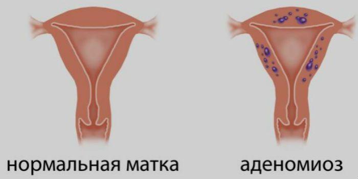 Аденомиоз фото