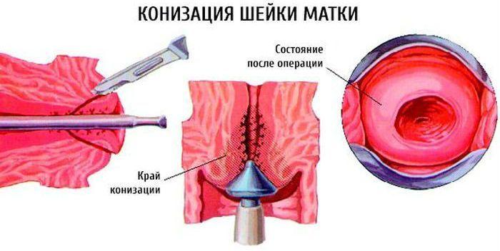 Конизация шейки матки фото