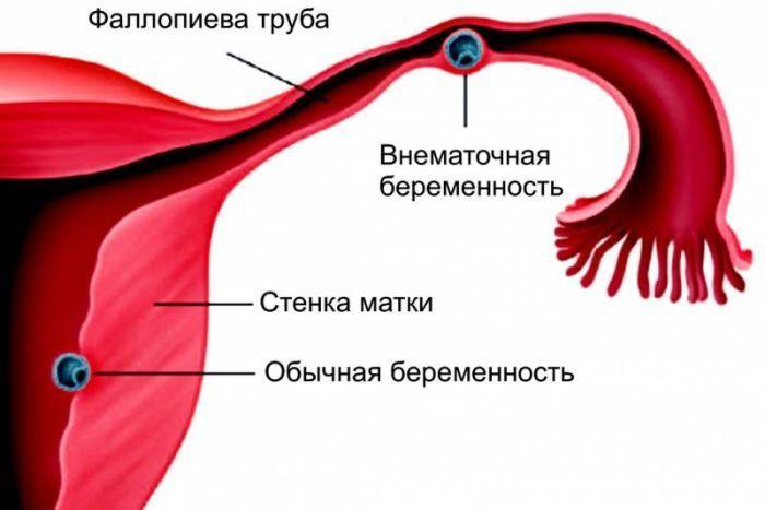 Внематочная беременность фото