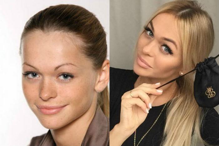 Хилькевич до и после пластики фото
