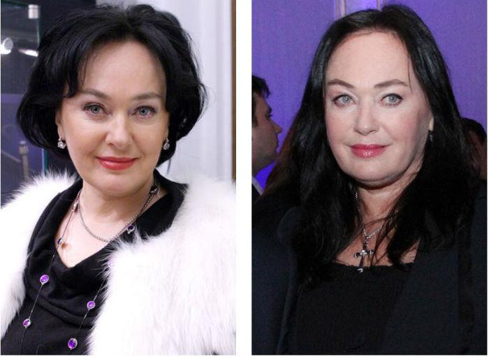 Лариса Гузеева после пластики и до нее фото