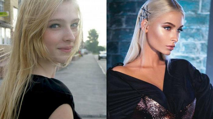 Алена Шишкова фото до и после пластики