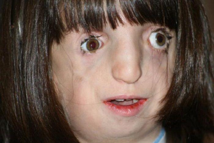 синдром Тричера Коллинза фото